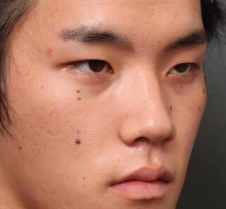 オザキクリニックLUXE新宿の全切開二重まぶた法+目頭切開+上まぶたの脱脂+眼瞼下垂の症例写真(ビフォー)