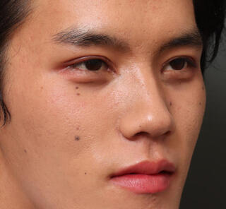 オザキクリニックLUXE新宿の全切開二重まぶた法+目頭切開+上まぶたの脱脂+眼瞼下垂の症例写真(アフター)