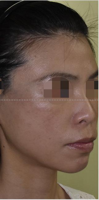 酒井形成外科のフェイスリフトの症例写真(アフター)