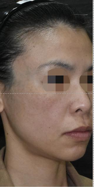 酒井形成外科のフェイスリフトの症例写真(ビフォー)