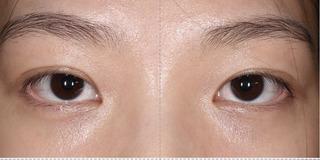 酒井形成外科の目頭切開の症例写真(ビフォー)