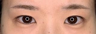 くさのたろうクリニックの眼瞼下垂+目頭切開+目尻切開の症例写真(ビフォー)