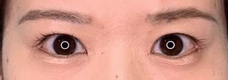 くさのたろうクリニックの眼瞼下垂+目頭切開+目尻切開の症例写真(アフター)