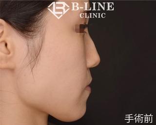 B-LINE CLINICの【BL式鼻尖形成術】1ヵ月後の症例写真(ビフォー)