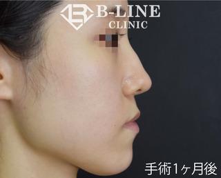 B-LINE CLINICの【BL式鼻尖形成術】1ヵ月後の症例写真(アフター)