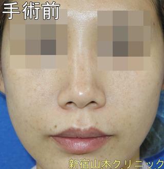 山本クリニックの小鼻縮小術の症例写真(ビフォー)