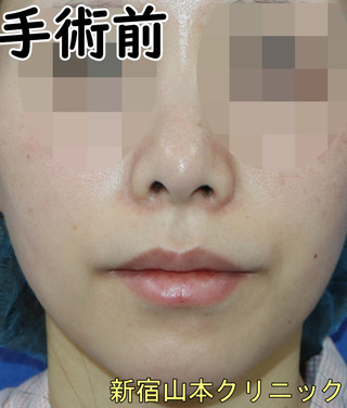 山本クリニックの外側人中短縮(上口唇挙上)の症例写真(ビフォー)