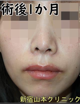 山本クリニックの外側人中短縮(上口唇挙上)の症例写真(アフター)