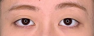 くさのたろうクリニックの目尻切開+埋没二重の症例写真(ビフォー)