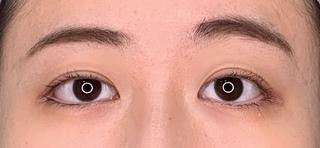 くさのたろうクリニックの目尻切開+埋没二重の症例写真(アフター)
