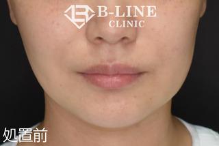 B-LINE CLINICの【BL(美ライン)リフト】処置10日後の症例写真(ビフォー)