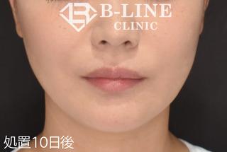 B-LINE CLINICの【BL(美ライン)リフト】処置10日後の症例写真(アフター)