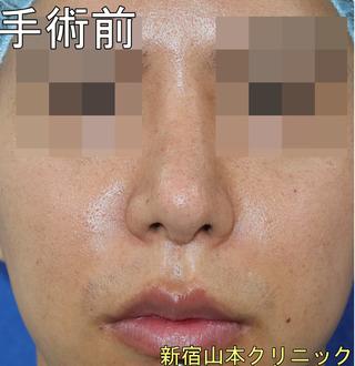 山本クリニックの人中短縮術(リップリフト・鼻下短縮)の症例写真(ビフォー)