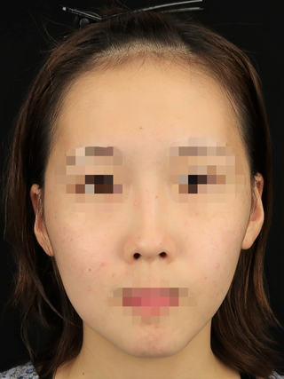 Taide Suenaga Clinic(タイデスエナガクリニック)の鼻尖縮小+耳介軟骨移植の症例写真(ビフォー)
