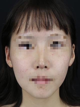 Taide Suenaga Clinic(タイデスエナガクリニック)の鼻尖縮小+耳介軟骨移植の症例写真(アフター)