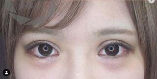大阪TAクリニックの目の6施術 複合の症例写真(アフター)