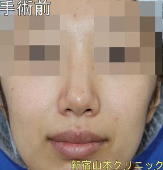 山本クリニックの鼻尖形成術+耳介軟骨移植術の症例写真(ビフォー)