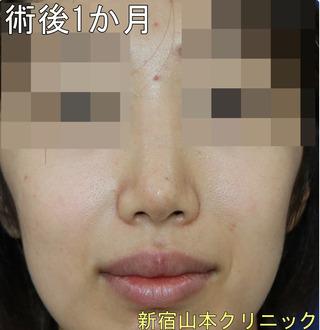 山本クリニックの鼻尖形成術+耳介軟骨移植術の症例写真(アフター)