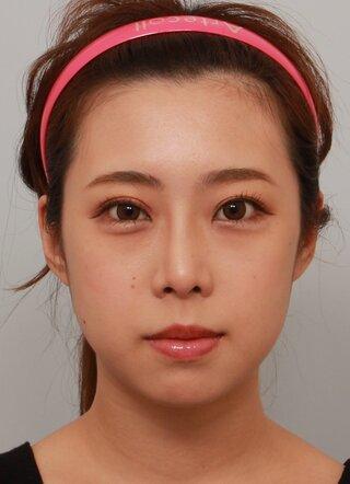 バノバギ整形外科の輪郭3点(エラ、頬骨、前顎)の症例写真(ビフォー)