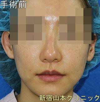 山本クリニックの外側人中短縮術(上口唇挙上術)の症例写真(ビフォー)