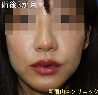 山本クリニックの外側人中短縮術(上口唇挙上術)の症例写真(アフター)