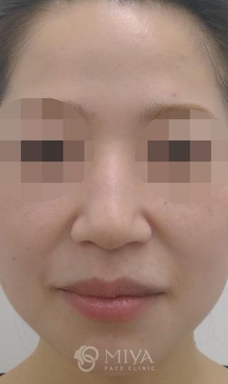 MIYAフェイスクリニックのヒアルロン酸注入による隆鼻術の症例写真(ビフォー)