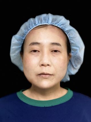 東京ロイヤルクリニックの切らない眼瞼下垂の症例写真(ビフォー)