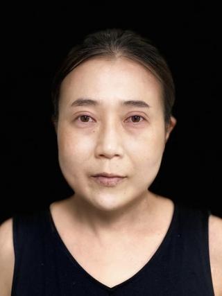東京ロイヤルクリニックの切らない眼瞼下垂の症例写真(アフター)