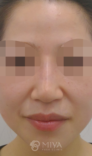 MIYAフェイスクリニックのヒアルロン酸注入による隆鼻術の症例写真(アフター)