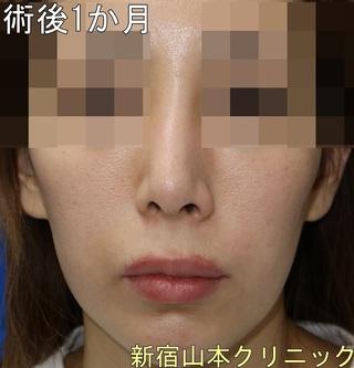 山本クリニックの上口唇挙上術(外側人中短縮術)の症例写真(アフター)