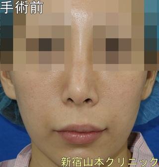山本クリニックの上口唇挙上術(外側人中短縮術)の症例写真(ビフォー)