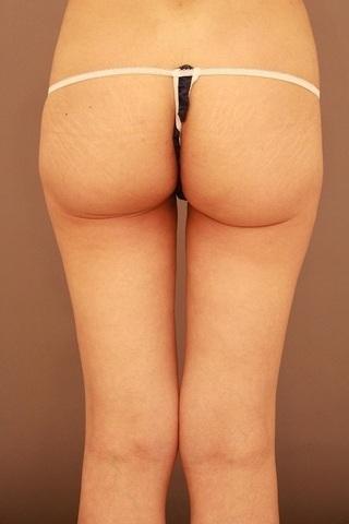 Mods Clinic(モッズクリニック)のベイザー脂肪吸引の症例写真(アフター)