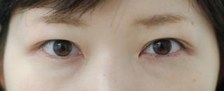 みずほクリニックの切開法重瞼で控えめでさりげない二重をご希望の症例写真(アフター)