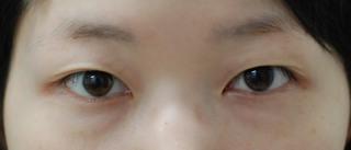 みずほクリニックの切開法重瞼で控えめでさりげない二重をご希望の症例写真(ビフォー)