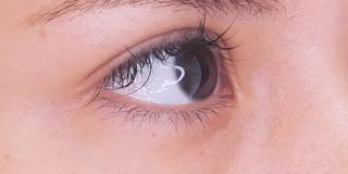 セルリアンタワーイセアクリニック(東京イセアクリニック渋谷院)の涙袋ヒアルロン酸の症例写真(ビフォー)