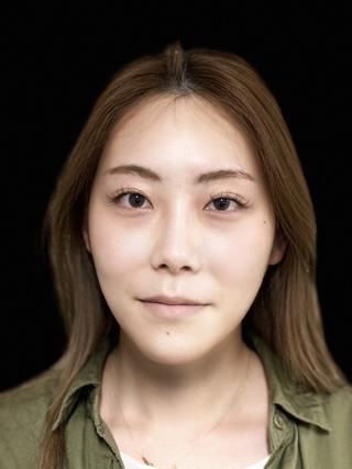 東京ロイヤルクリニックの目の下脱脂の症例写真(ビフォー)