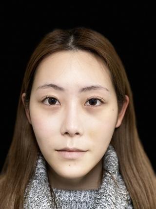 東京ロイヤルクリニックの目の下脱脂の症例写真(アフター)