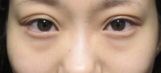 X CLINICの切らない目の下のたるみとり+コンデンスリッチ+マイクロナノファット脂肪注入の症例写真(ビフォー)