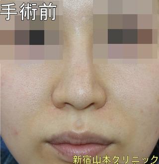 山本クリニックの他院小鼻縮小修正術の症例写真(ビフォー)