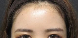 X CLINICの額とこめかみの脂肪注入の症例写真(アフター)