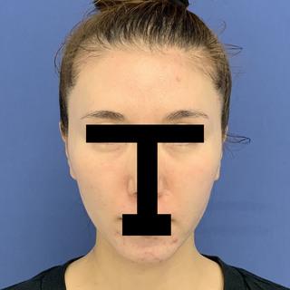グローバルビューティークリニックの『 秘密の美肌小顔リフト 』『 目の下の切らないたるみ取り 』『マイクロCRF(フィラーゲラー)目の下~ゴルゴ』『 コンデンスリッチフェイス(顎、こめかみ) 』『 うるおいコラーゲンニードル 』の症例写真(ビフォー)