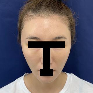 グローバルビューティークリニック 大阪院の『 秘密の美肌小顔リフト 』『 目の下の切らないたるみ取り 』『マイクロCRF(フィラーゲラー)目の下~ゴルゴ』『 コンデンスリッチフェイス(顎、こめかみ) 』『 うるおいコラーゲンニードル 』の症例写真(アフター)
