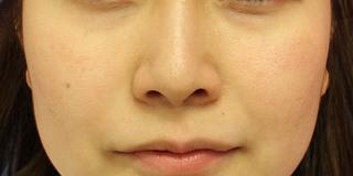 グローバルビューティークリニック 大阪院の『 鼻尖形成術 』『 鼻柱下降術』『 鼻翼縮小術(内外) 』の症例写真(ビフォー)