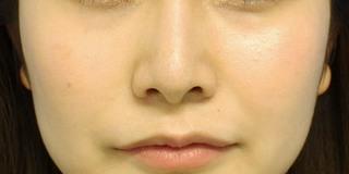 グローバルビューティークリニック 大阪院の『 鼻尖形成術 』『 鼻柱下降術』『 鼻翼縮小術(内外) 』の症例写真(アフター)