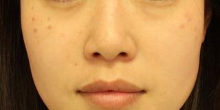 グローバルビューティークリニック 大阪院の『 鼻尖形成(3D) 』『 鼻尖部軟骨移植 』『 鼻翼縮小 』の症例写真(ビフォー)
