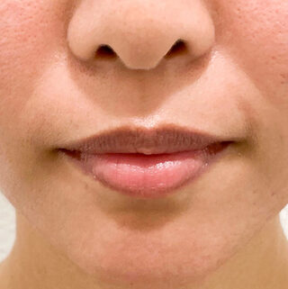 A CLINIC(エークリニック)銀座院のふっくら唇がその日のうちに手に入る♪【スマイルリップ】の症例写真(ビフォー)