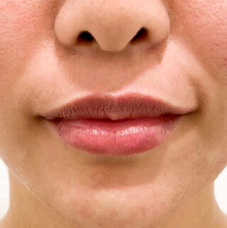 A CLINIC(エークリニック)銀座院のふっくら唇がその日のうちに手に入る♪【スマイルリップ】の症例写真(アフター)