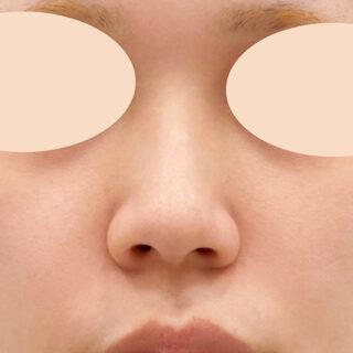 A CLINIC(エークリニック)銀座院の小鼻縮小術切開法とジャスミンノーズの組み合わせでバランスの良い理想的なお鼻に♪【小鼻縮小術(切開法)/ジャスミンノーズ】の症例写真(ビフォー)