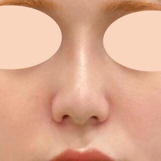 A CLINIC(エークリニック)銀座院の小鼻縮小術切開法とジャスミンノーズの組み合わせでバランスの良い理想的なお鼻に♪【小鼻縮小術(切開法)/ジャスミンノーズ】の症例写真(アフター)