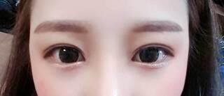ラボム整形外科の目頭切開+上向き切開の症例写真(アフター)